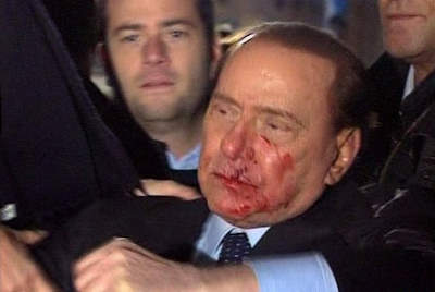Berlusconi attacked